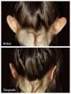Otoplastia en viña (cirugia de orejas)